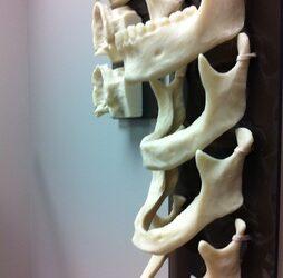 Résorption osseuse